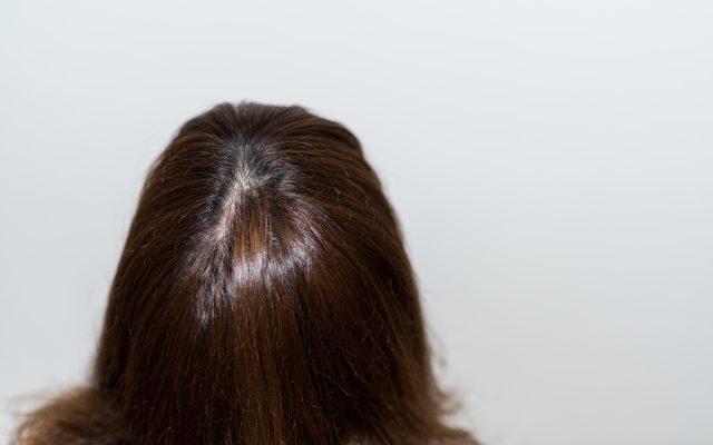 発毛や育毛に役立つサプリメント!その仕組みとは?